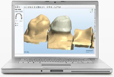 CAD / Modeling   Unidens